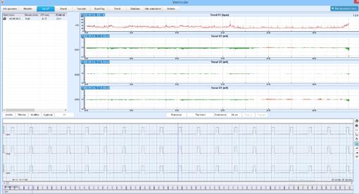 Software-analisi-edan