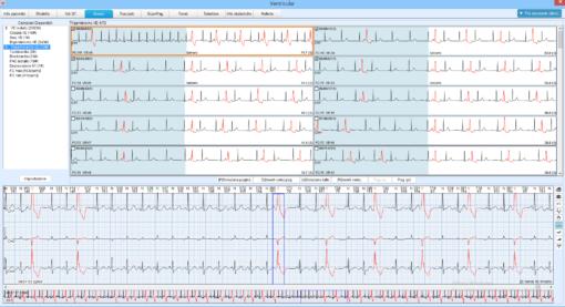 software-analisi-se2003-edan